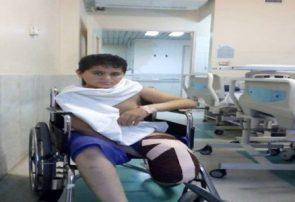 نوجوان جهادگر زواره ای درحال ضدعفونی شهر پای خود را از دست داد