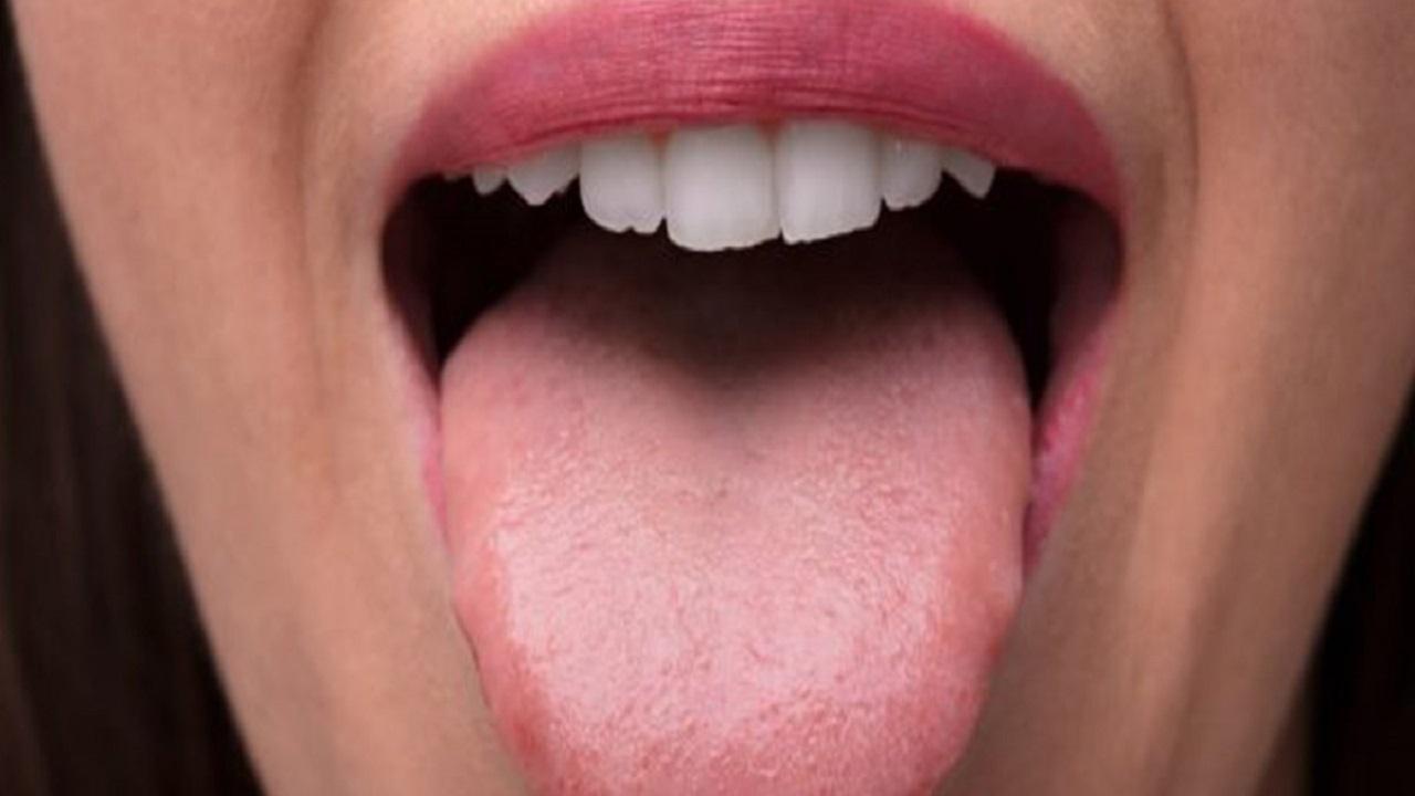 سرطان زبان، گردن و ریه را چگونه تشخیص دهیم؟
